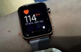 Phát hiện nhịp tim bất thường nhờ đồng hồ Apple Watch