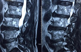 Thoát cảnh liệt giường nhờ phẫu thuật lấy nhân thoát vị đĩa đệm đa tầng