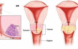 Tiên lượng bệnh ung thư cổ tử cung