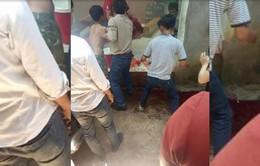Đắk Lắk: Điều tra vụ nổ khiến 2 thiếu niên nhập viện nguy kịch