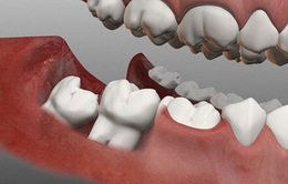 Đau răng khôn: Những điều quan trọng bạn cần biết