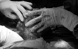 Phẫu thuật khối u trung thất gây ho, khó thở cho một nữ bệnh nhân
