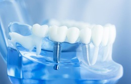 Bạn hiểu cấy ghép răng Implant là như thế nào không?