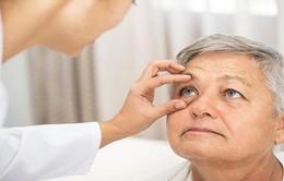Mỹ: Khám mắt có thể phát hiện triệu chứng bệnh Alzheimer