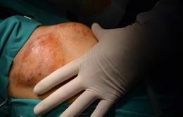 Mang khối u bằng bàn tay trước ngực vì tự điều trị bằng thuốc nam
