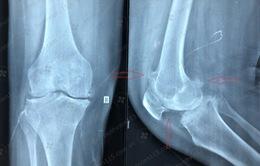 Ca phẫu thuật thay khớp gối cho bệnh nhân bị đau gối suốt 7 năm