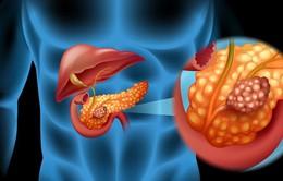 Điểm mặt những nhóm người dễ mắc ung thư tuyến tụy