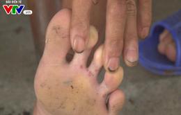 Cẩn trọng với nước ăn chân - Bệnh về da phổ biến mùa mưa lũ