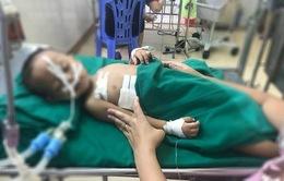 Bé trai 19 tháng tuổi bị đạn bi súng hơi bắn vào ngực phải