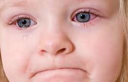 Nguyên nhân gây bệnh đau mắt đỏ
