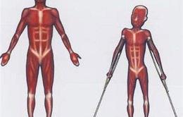 Điều trị chứng loạn dưỡng cơ nhờ công nghệ chỉnh sửa gen