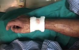 Người đàn ông bị đứt động mạch, dây thần kinh do tai nạn lao động