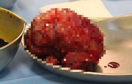 Ca cắt u gan cho bệnh nhi không truyền máu hiếm gặp
