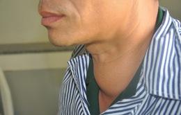 Gia tăng bệnh nhân mắc bệnh tuyến giáp
