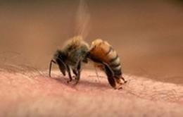 Hai trường hợp tử vong do ong đốt