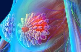 Liệu pháp nội tiết tố mới trong điều trị ung thư vú
