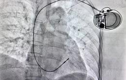 Cấy máy tạo nhịp tim cho bệnh nhân 62 tuổi