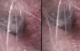Phát hiện ổ nhện bên trong tai người đàn ông Trung Quốc