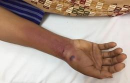 Lạng Sơn: Gia tăng bệnh nhân bị rắn độc cắn