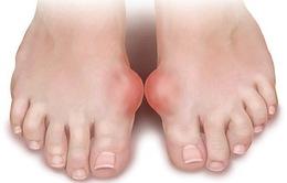 Những điều người bệnh gout cần đặc biệt lưu ý