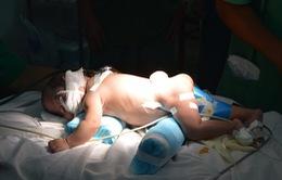 Trẻ 1 tháng tuổi bị bỏ rơi mang khối u vùng cột sống thắt lưng