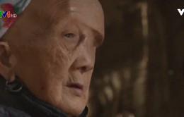 Gặp lại người phụ nữ mang khối u quái trên mặt: Cuộc sống bình thường sau 22 năm u ám