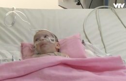 Phẫu thuật tách cặp song sinh dính liền người Palestine