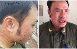Nhân viên an ninh sân bay Nội Bài bị hành hung