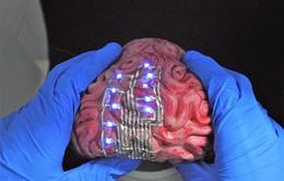 """Phát minh """"hình xăm"""" lên não để điều trị bệnh"""
