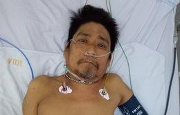 Tìm người thân cho bệnh nhân nam sốc nhiễm trùng nguy kịch