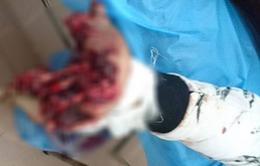 Kinh hãi: Bàn tay bị dập nát do dùng điện thoại trong lúc đang sạc