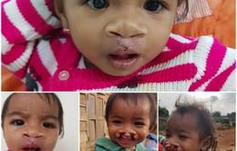 Cơ hội phẫu thuật miễn phí cho trẻ khe hở môi, vòm miệng tại Đăk Nông