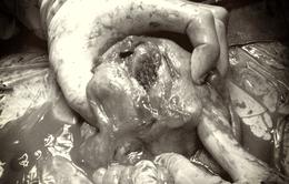 Hai lần mổ mở bụng cứu sản phụ vỡ tử cung sau sinh nguy kịch