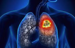Ung thư phổi giai đoạn cuối - Nỗi ám ảnh đáng sợ