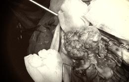 Đau đầu, đến bệnh viện phát hiện u màng não khổng lồ
