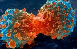 Phương pháp mới ngăn chặn tế bào ung thư phát triển