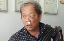 Hội Nhà báo Việt Nam đề nghị bảo vệ phóng viên khi tác nghiệp