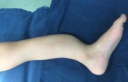 Bị loạn sản xơ xương, bé 8 tuổi cẳng chân biến dạng