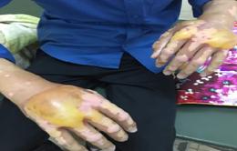 Viêm da tiếp xúc kích ứng do bôi thuốc không đúng chỉ định