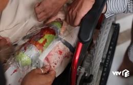 Hậu trường máu me cảnh Nga (Ngọc Lan) tự lấy dao đâm mình trong Bán chồng