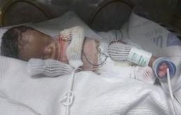 Mỹ: Em bé sơ sinh đầu tiên ở Texas được ghép da thành công
