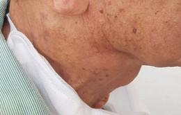 Khó thở, suy kiệt vì ung thư hạ họng vì từ chối chỉ định điều trị