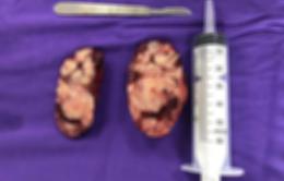 Bé 19 tháng bụng ngày một to lên vì khối u thượng thận
