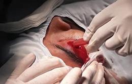Nhiễm vi khuẩn hầu họng: Bé trai bị áp xe diện rộng, hoại tử da, hủy xương