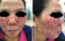 Đẹp hay hại da từ phương pháp lột da?