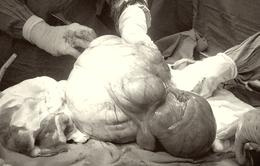 Phẫu thuật gấp lấy khối u xơ tử cung hơn 6kg