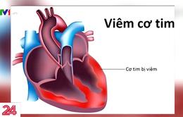 Chưa ghi nhận dịch virus viêm cơ tim