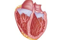 Phòng ngừa bệnh viêm cơ tim bằng cách nào?