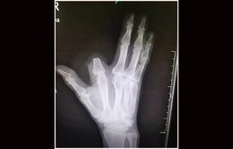 Tự... cắt ngón tay để trừ nọc độc rắn cắn
