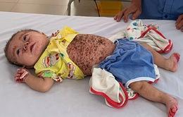 Xót xa bé 5 tháng tuổi bị viêm da tiết bã bội nhiễm nặng